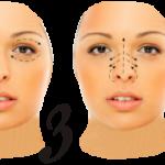 Техника косметического массажа для лица