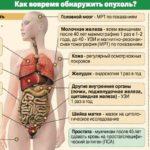 Как выявить онкологию?