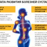 Лечение болезней суставов и позвоночника